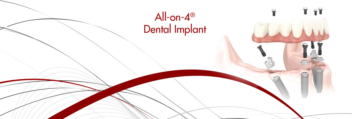 all on 4 dental implants