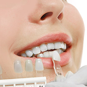 Teeth Whitening Houston, TX