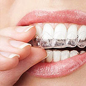 Invisalign® Dentist Houston, TX