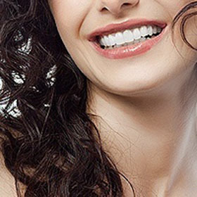What procedures are used in a typical smile makeover?