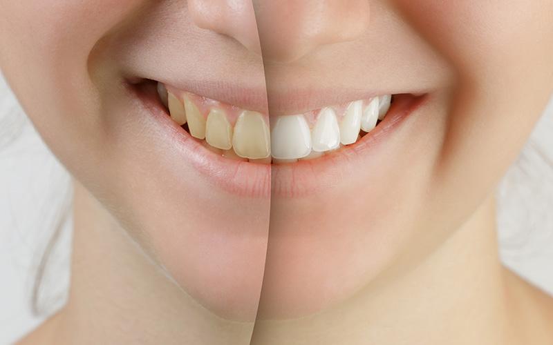 Teeth Whitening Houston Tx