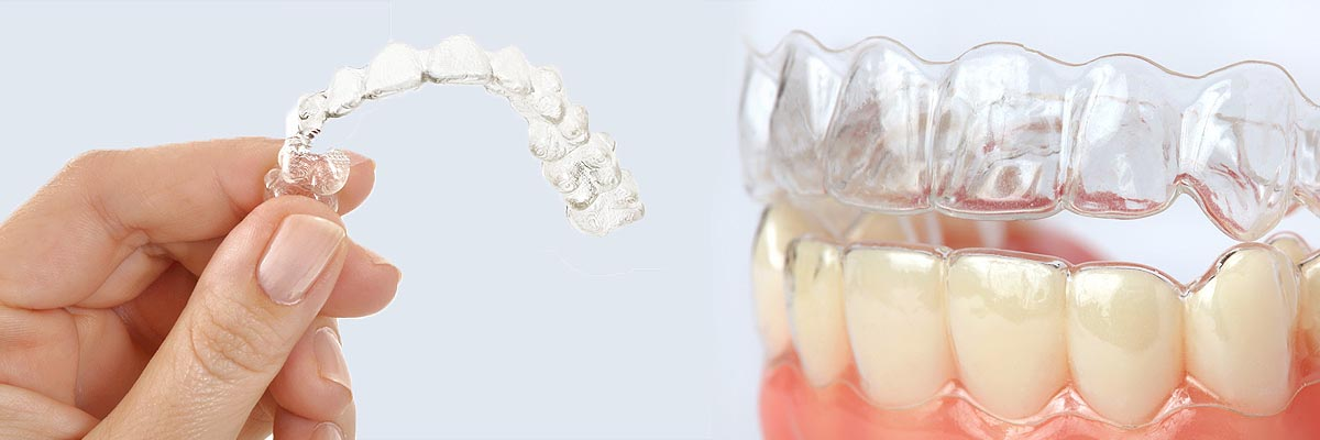 Alternative To Braces For Teens