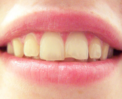 What Should I Do If I Chip My Tooth Houston, TX?
