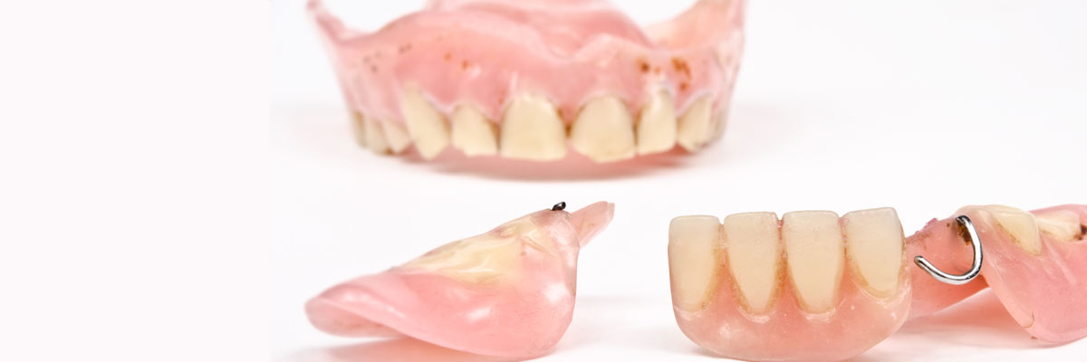 What do I do if I damage my dentures?