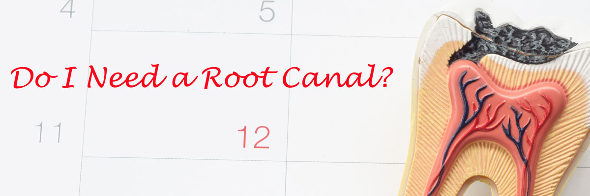 Do I Need A Root Canal?