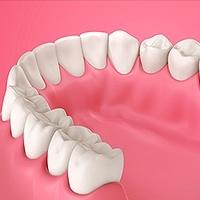 Causes of Gum Disease