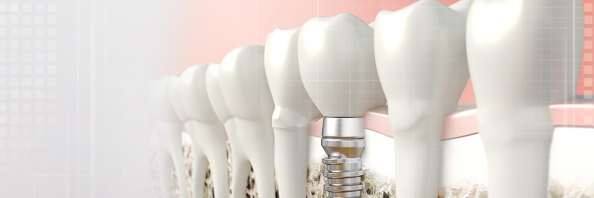 implant dentist header