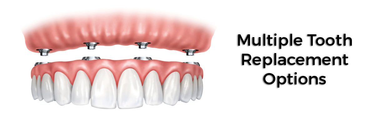 Multiple Teeth Replacement Options Houston, TX