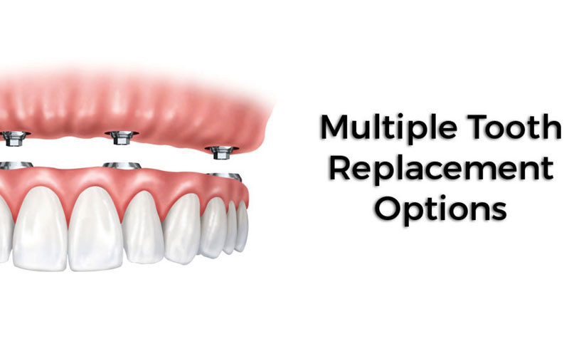 Multiple Teeth Replacement Options