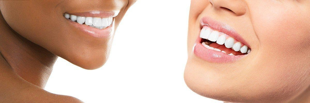 teeth whitening at dentist Houston