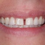 Before & After - Smile Gallery