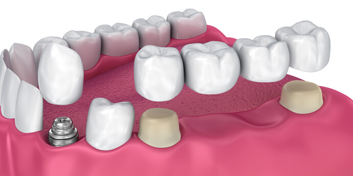 Dental Crowns And Dental Bridges Houston, TX