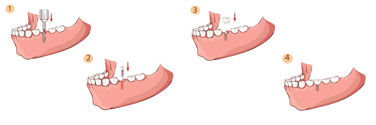 Houston The Dental Implant Procedure