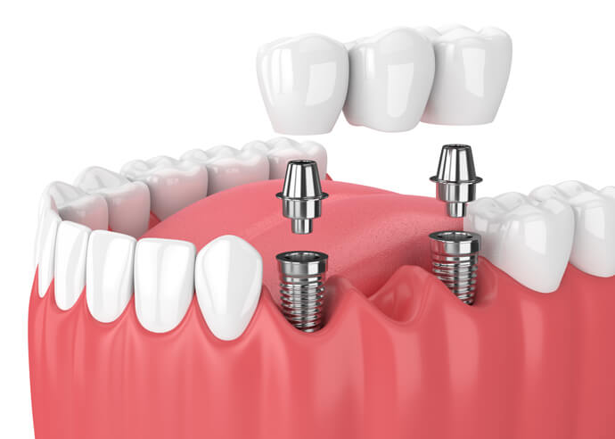 Dental Implants Houston, TX