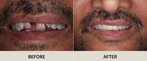 Smile Gallery - Before After